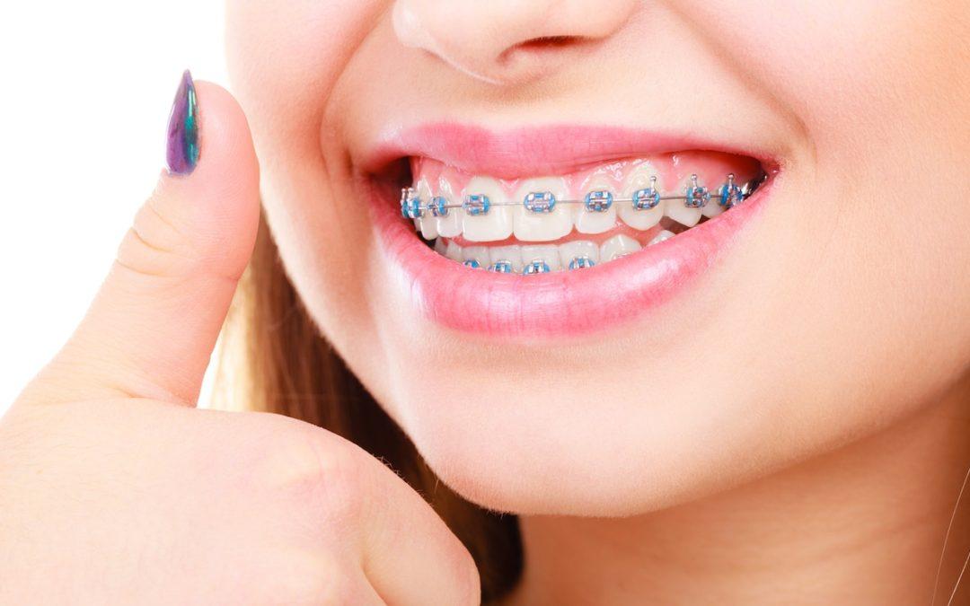 How do you maintain braces?